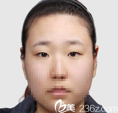 我让聊城韩美倪景辉医生做了全切双眼皮手术后,改变了我的小眼睛