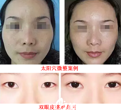 属于安庆维多利亚整形美容医院的丰太阳穴案例+双眼皮整形案例