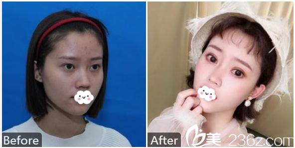 深圳福华王天成做的双眼皮案例