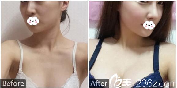 深圳福华孟晨曦假体隆胸案例图