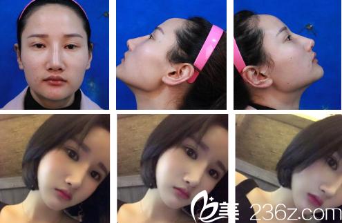 上海华美下颌角整形案例对比