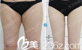 北京东方和谐医疗美容诊所案例