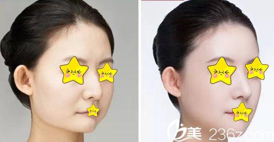 玻尿酸隆鼻+丰下巴效果前后对比图片