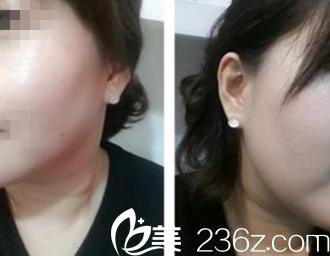 韩国体引脂医院张斗烈给我做的双重激光下巴吸脂术效果真心很明显!