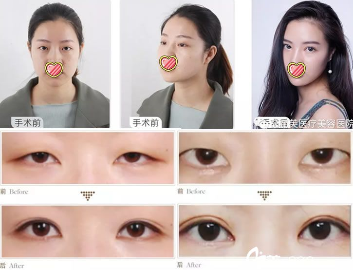 临安芘丽芙整形医院双眼皮案例