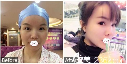 广州美恩整形医院雷涛脂肪填充+隆鼻+隆下巴案例