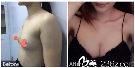 广州美恩孙晓捷医生自体脂肪隆胸案例