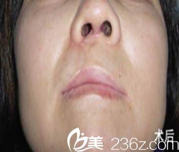 我总算预约到厦门长庚的陈国鼎医生做了唇额裂和鼻子整形修复手术