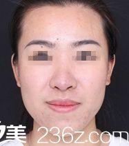 鼻整形失败后辗转找到中山一院许扬滨教授采用肋软骨成功做了鼻修复