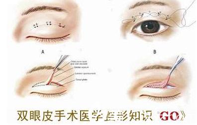 聊城韩美整形医院双眼皮介绍图