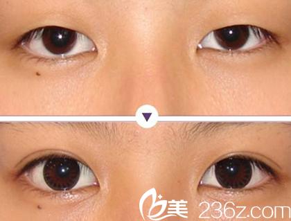 聊城韩美美容医院双眼皮案例对比图