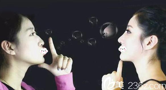 王大太医生鼻综合隆鼻案例侧面特写