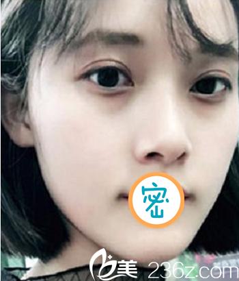 绵阳韩美彭太平光子刀双眼皮手术打造灵动双眼 术后恢复全纪录