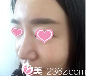 你给评下我在北京知音医院找谭智元做的膨体隆鼻效果如何