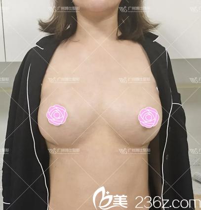 之前在广州博仕做过鼻综合的她再次选择张建军做了月亮女神隆胸
