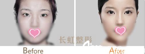 北京长虹无痕双眼皮案例
