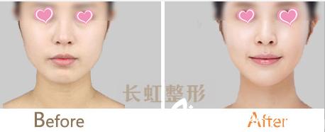 北京长虹假体隆鼻案例