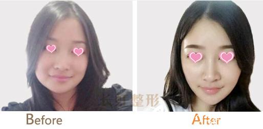 北京长虹面部吸脂瘦脸案例