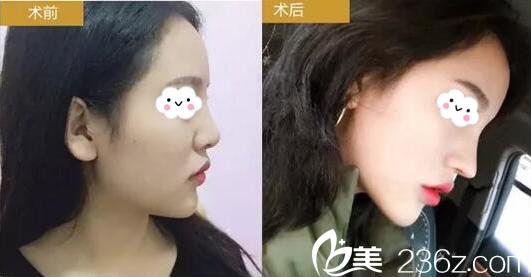 湛江华美美容医院隆鼻案例对比图