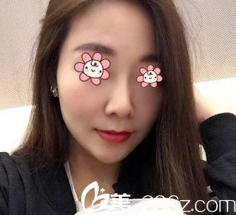 韩国Cocoline整形做无假体隆鼻+耳软骨垫鼻尖的这院长名字真逗