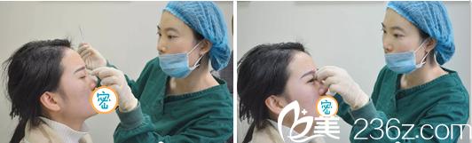 达州双均李易蔓注射玻尿酸隆鼻