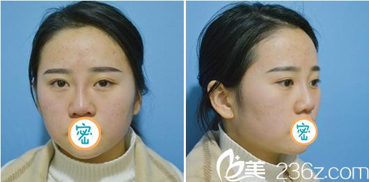 李易蔓玻尿酸隆鼻术后即刻效果