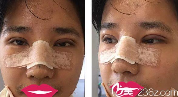 双眼皮、隆鼻和丰下巴综合术后第三天
