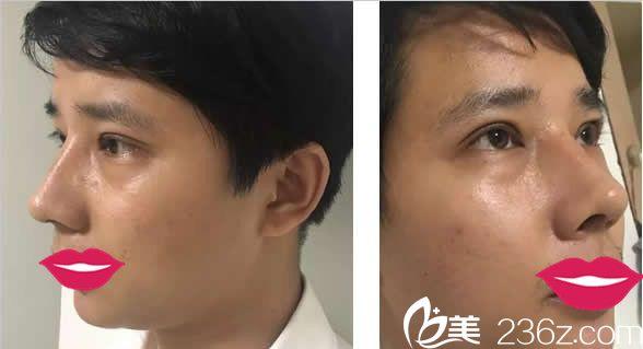 中泰假体隆鼻和丰下巴半个月