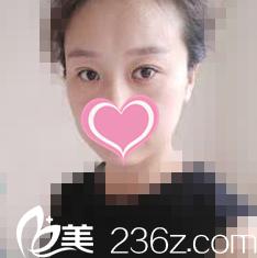 韩国世贤整形外科医院柳炫硕术前照片1
