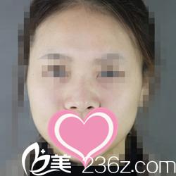 韩国世丽SERI整形外科医院柳在亿术前照片1
