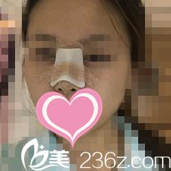 鼻整形术后第五天状况