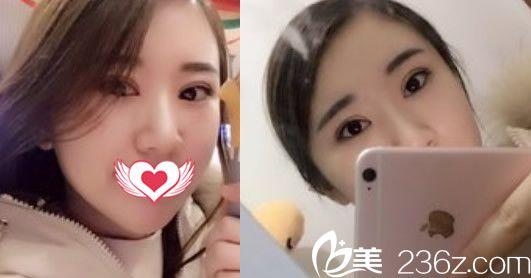 合肥壹加壹美容医院甘泉涌术后照片1