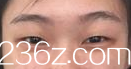 韩国Lien Jang整形外科医院张荣佑术前照片1