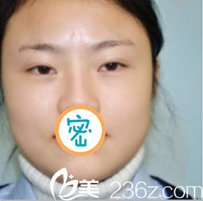 绵阳江油强白天鹅医疗美容诊所韩伟强术前照片1