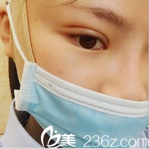 双眼皮修复术后第二天不红不肿