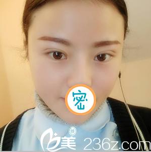 绵阳江油强白天鹅医疗美容诊所韩伟强术后照片1