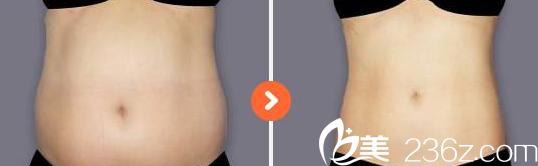 聊城人民医院整形腹部抽脂术前术后对比图