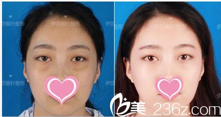 北京伊莎雅轩医疗美容医院案例