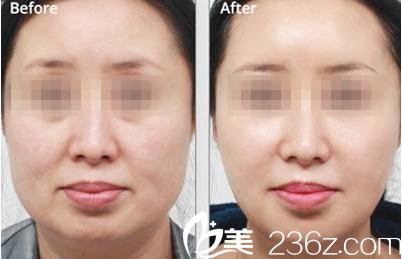 面部提升术真人案例前后对比