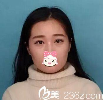 郑州丽人整形医院郑义刚 术前照片1