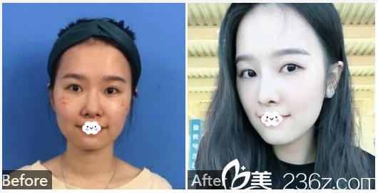 汕头曙光殷运成医生鼻综合隆鼻案例对比图
