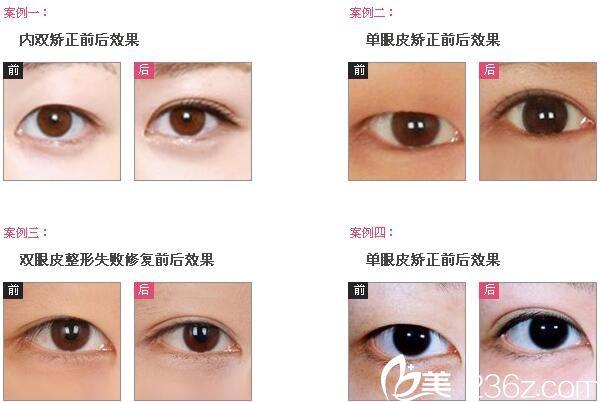 大小眼怎么办?南宁慧美双眼皮手术9800元起帮你塑造美眼