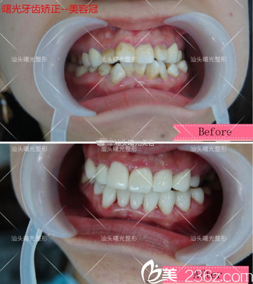 汕头曙光庞观养做的美容冠牙齿矫正案例