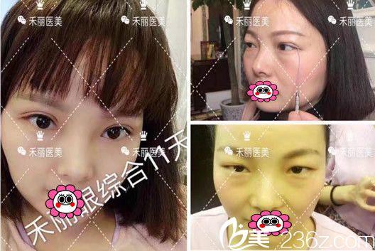 在合肥禾丽康美整形美容医院做眼综合整形术后1-11天恢复过程照片