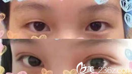合肥禾丽整形美容医院全切双眼皮整形案例前后对比图