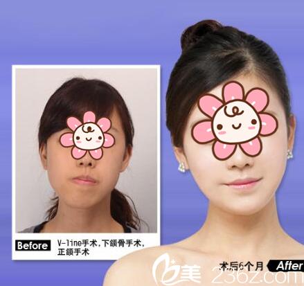 杨辉俊做正颌手术怎么样?正颌手术案例分享