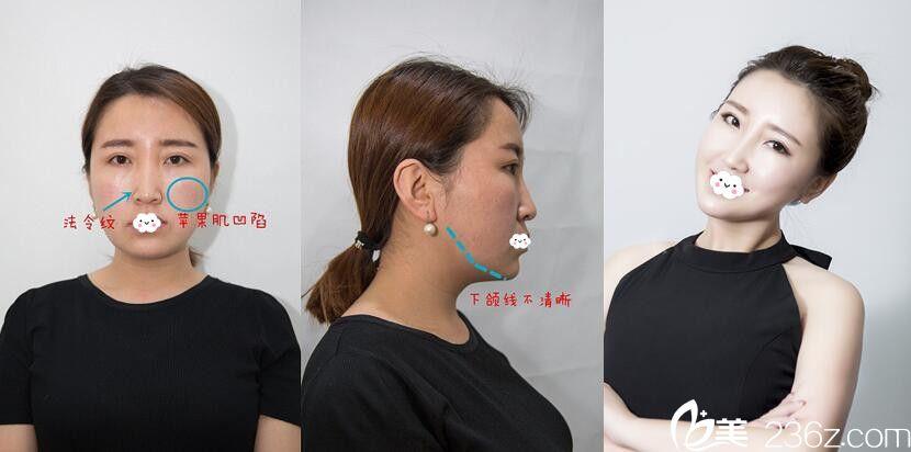 天津美联致美医学美容医院埋线案例