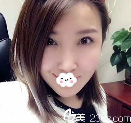 一年前她到天津美联致美让盛少廷做了吸脂瘦脸后无反弹 成功维持小V脸