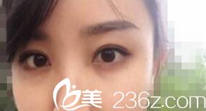 看我找鞍山菲之都整形外科金光龙做的韩式无痕双眼皮+开眼角效果还不错吧!