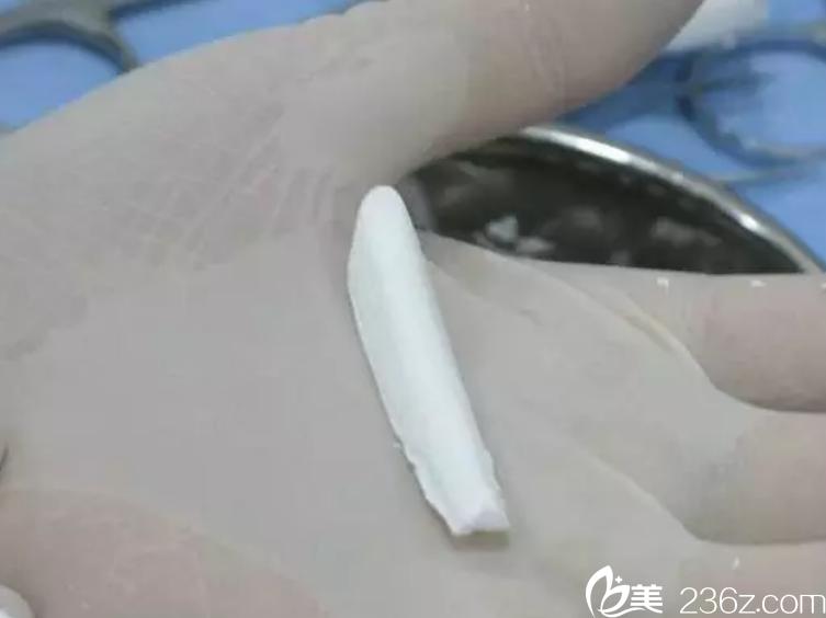 膨体鼻假体
